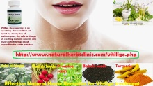 Effective Natural Home Remedies for Vitiligo treatment