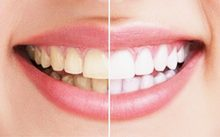 cosmetic dentistry burnaby.jpg