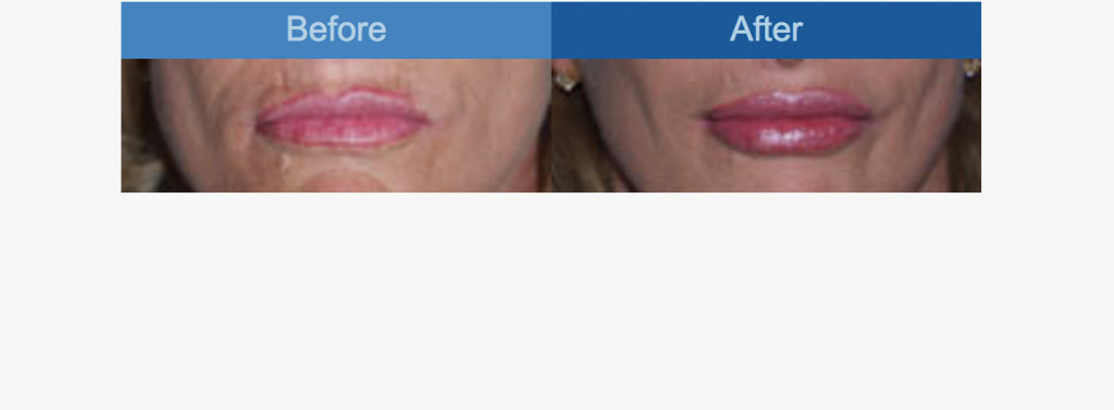 lip-augmentation-before-and-after-image1.jpg