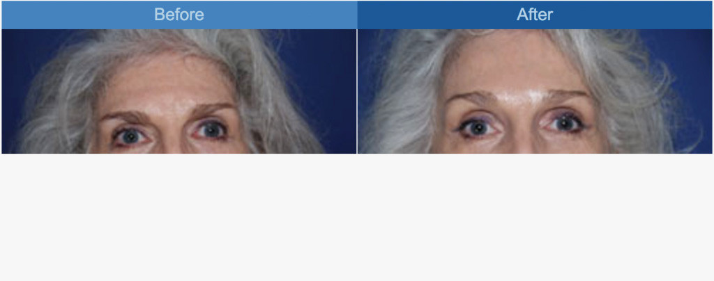 browlift-before-and-after-image1.jpg