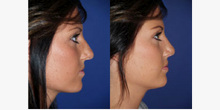 RHINOPLASTY-before-and-after-image11.jpg